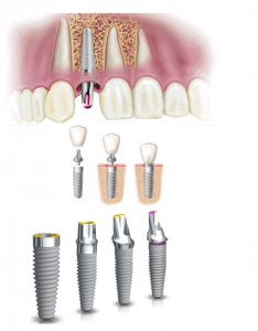 Descriptiva de implantes dentales